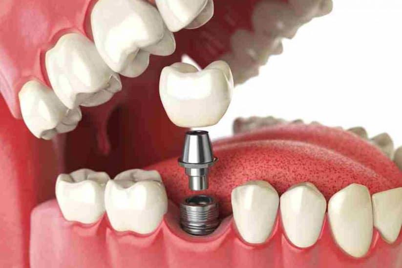 implantes dentales valencia